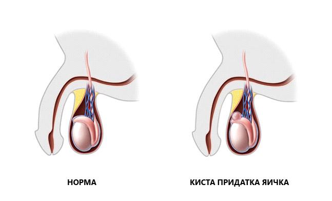 Фото:Киста семенного канатика слева