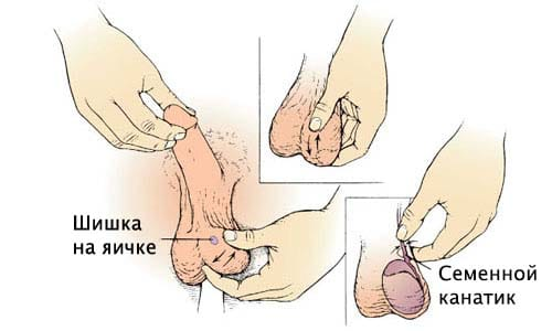 Полиартрит  что такое причины лечение симптомы