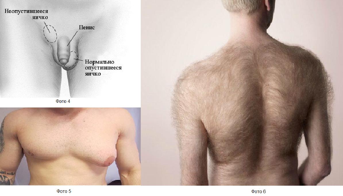 Фото:Рак яичка: Вторичные симптомы (фото)