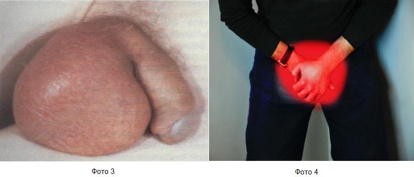 Фото:перекрут яичка симптомы (фото 3), перекрут яичка (фото 4)
