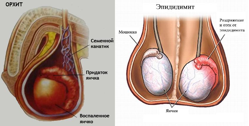 болезнь мужских яиц