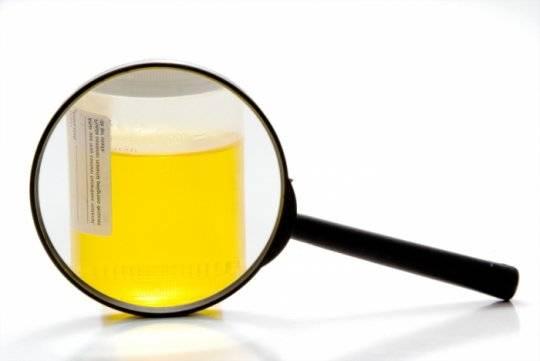 Фото:Особенности диагностики: эпидидимит-анализы