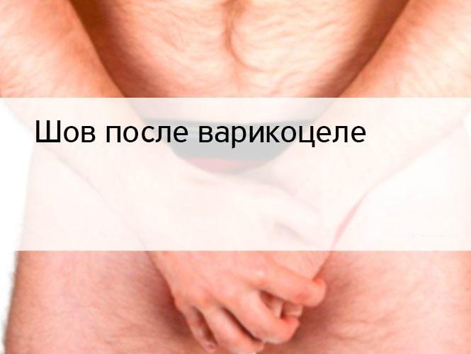 Фото:Шов после варикоцеле