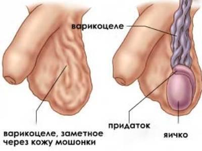 Сперма варикоцел