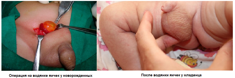 Фото:Водянка яичек у мальчиков: фото после лечения