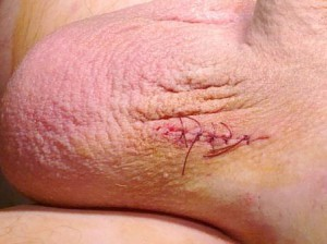 Фото:Варикоцеле: шрам после операции фото