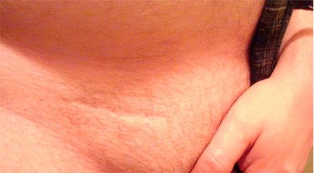 Фото:Водянка яичка: последствия операции