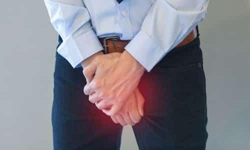 Фото:Мужской варикоцеле: причины заболевания